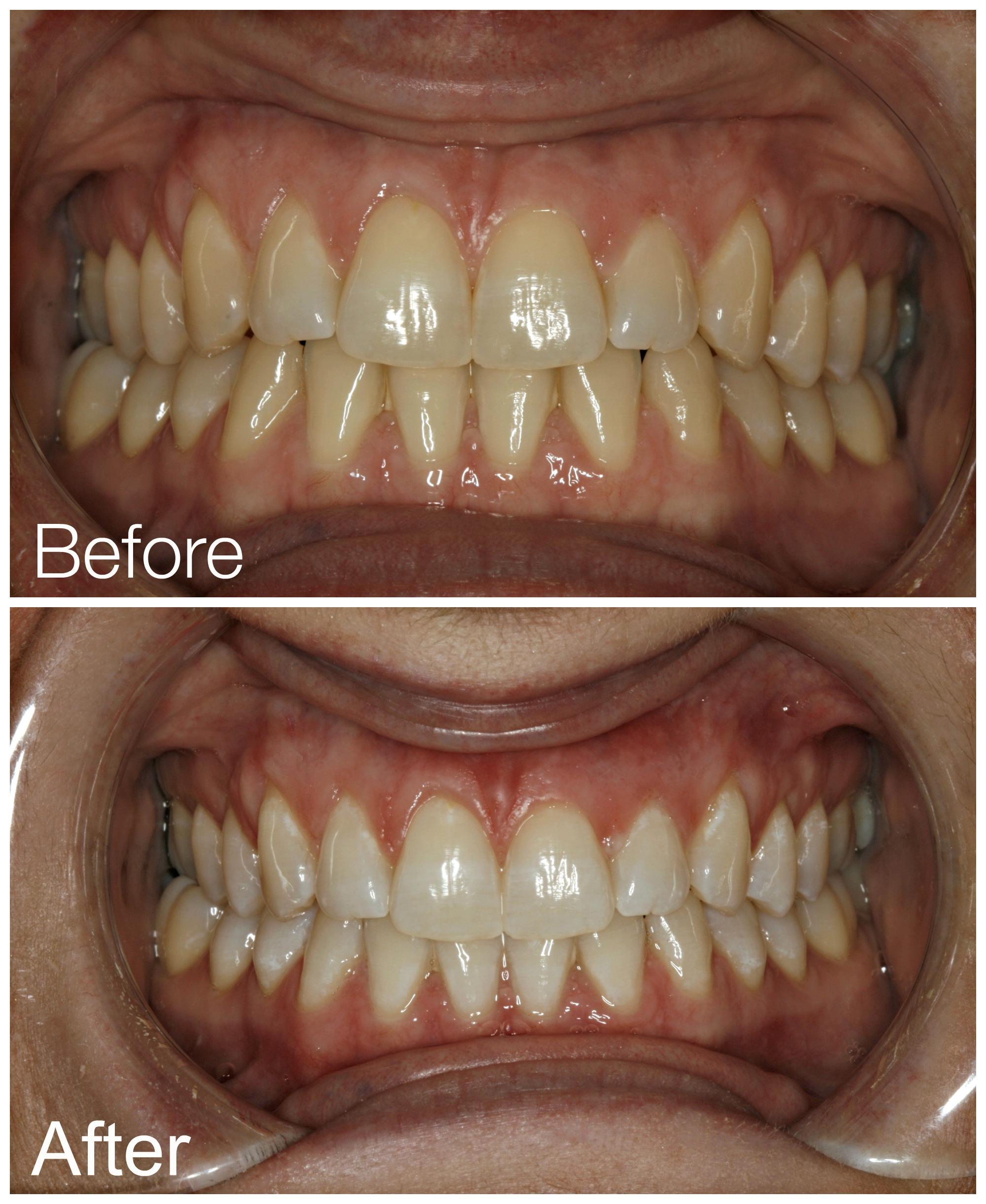 Teeth Whitening Austin Tx 78738 Sagedentistryaustin Com
